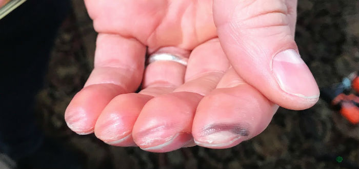 hard-earned calluses